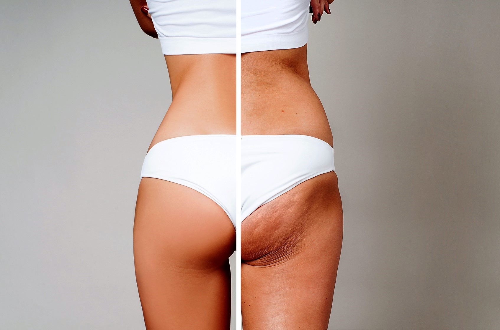 3 sposoby na pozbycie się cellulitu i jędrną skórę.