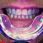 Phonebleaching – hit czy kit? Popularne wśród celebrytów i influencerów wybielanie zębów telefonem – Co na to stomatolodzy?